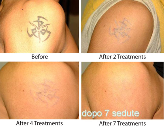 Treatment for Tattoo Removal